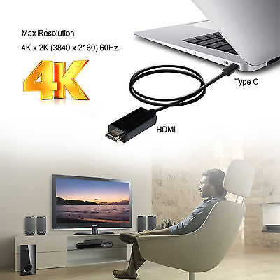 AU12.34 • Buy USB C To HDMI Cable Thunderbolt 3 Support 4K@60Hz For 2016 MacBook Pro Galaxy S8