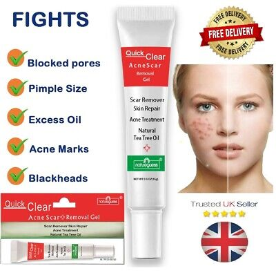 £7.99 • Buy Acne Cream Gel Skin Treatment Pores Scar Removal Oil Control Blemishes Spots