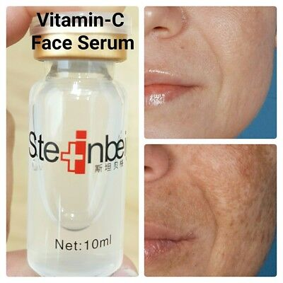Vitamin C Serum With Hyaluronic Acid Very Effective For Dark Spots & Anti Ageing • 3.99£