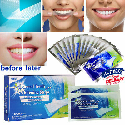AU11.25 • Buy 28 White Strip Teeth Whitening Strips Professional Advanced VW Tooth Bleaching