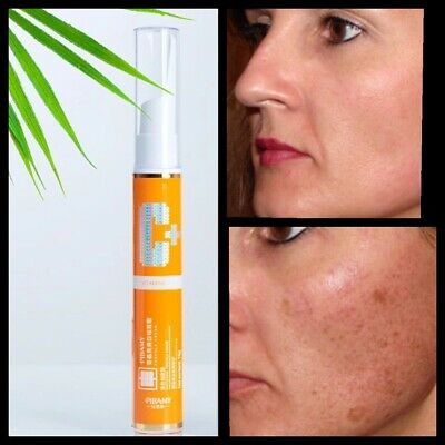 £5.49 • Buy Vitamin C Very Effective Skin Care Cream For Scars Reduce Dark Patch Anti Ageing