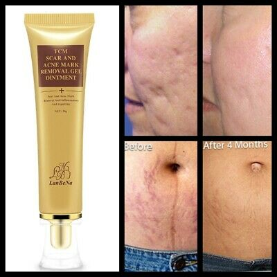 £5.99 • Buy Best Scar Removal Cream Skin Care For Scars Reduce Surgery Acne Stretch Marks