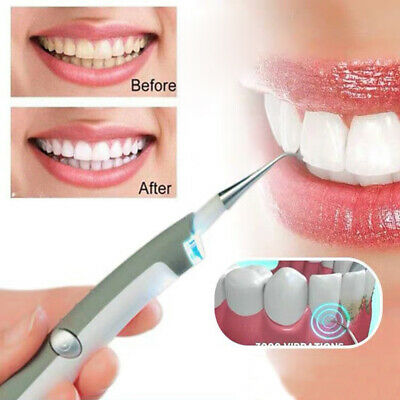 Electric Dental Tooth Stain Polisher Teeth Whitener Plaque Remover Cleaner UK • 3.79£