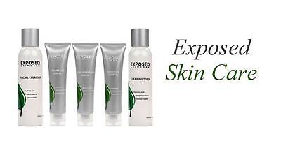 £34 • Buy Exposed Skin Care ~ Individual Products ~ Acne Treatment For Clear Healthy Skin