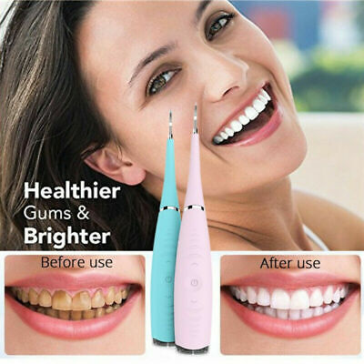 $15.99 • Buy CleanOral Ultrasonic Tooth Cleaner Electric Teeth Stain Dental Cleaning Kit US