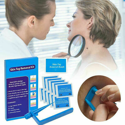 AU14.83 • Buy Micro TagBand Skin Tag Remover Kit For Fast & Effective Skin Tag Removal