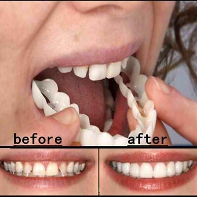$4.99 • Buy Set Upper & Lower Magic Teeth Brace Temporary Smile Comfort Fit Cosmetic Denture