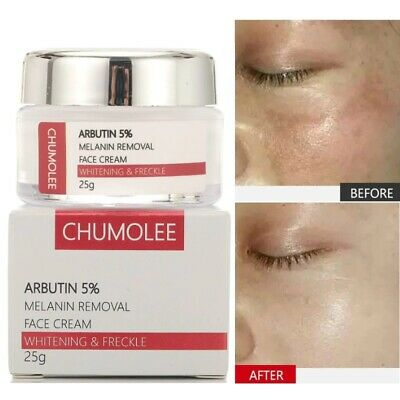 £10.74 • Buy Alpha Arbutin 5% Strong Removal Melasma Whitening Cream Freckle Speckle Spots