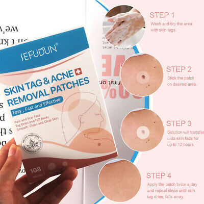 AU13.97 • Buy 108pcs/pack Pain-free Strong Stickiness Spa Skin Tag Removal Patch Face Care AU