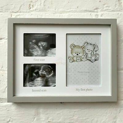 Wooden Natural New Born Baby Scan Picture Display Photo Frame With Chalkboard  • 6.99£