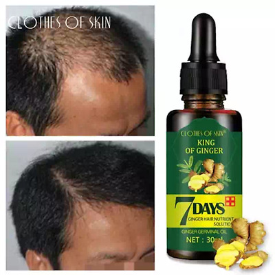 AU16.20 • Buy Regrowth 7Day Ginger Germinal Hair Growth Serum Hairdressing Oil Loss Treatment