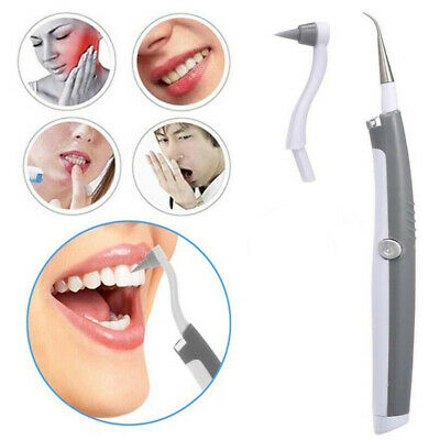 UK Electric Dental Tooth Stain Polisher Teeth Whitener Plaque Remover Cleaner • 3.69£