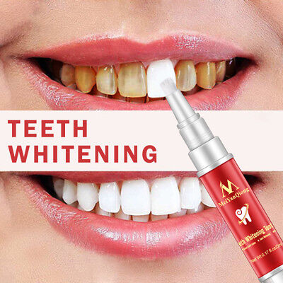 Ee_ Teeth Whitening Brush Plaque Stains Remover Cleaning Dental Oral Care Alluri • 4.17£
