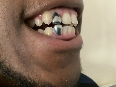18k  Silver Plated Grills  Tooth / Teeth Cap • 5£
