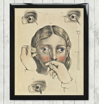 Print Poster Vintage Eye Anatomy Medical Chart . Optician Specs Glasses Sign 251 • 6.99£