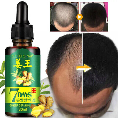 AU7.65 • Buy 30ml 7 Days Hair Fast Growth Essential Oil Natural Ginger Regrowth Serum