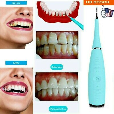 $15.35 • Buy Electric Ultrasonic Dental Scaler Tooth Stains Tartar Cleaner Teeth Whiten USA
