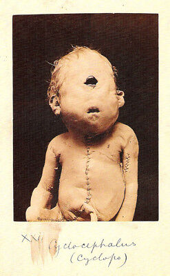£7.95 • Buy Framed Print - Victorian Medical Oddities Cyclops Baby (Gothic Horror Picture)