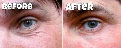 100 Treatments Remove Eyebags Anti-ageing Wrinkle Instant Facelift Cream Serum • 5.99£