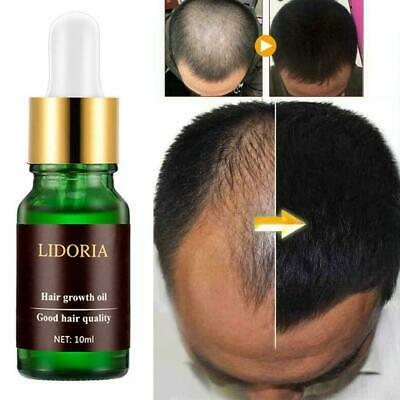 AU4.24 • Buy Regrow 7 Day Ginger Germinal Hair Growth Serum Hairdressing Oil Loss L0I4