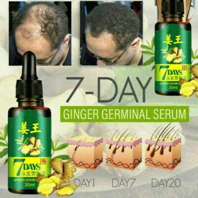 AU11.96 • Buy Regrowth 7Day Ginger Germinal Hair Growth Serum Hairdressing Oil Loss Treatement