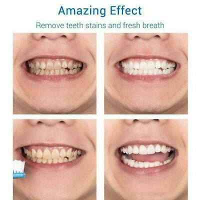 Teeth-Cleaning Whitening Mousse Toothpaste Removes Plaque Stains V5E1 • 3.07£