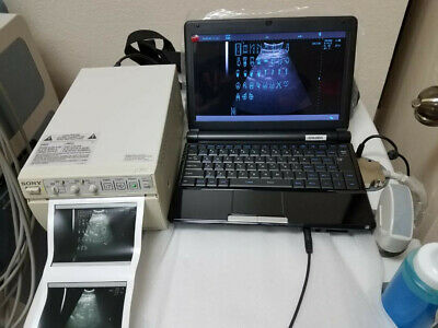 $1700 • Buy Laptop Ultrasound With Sony Printer