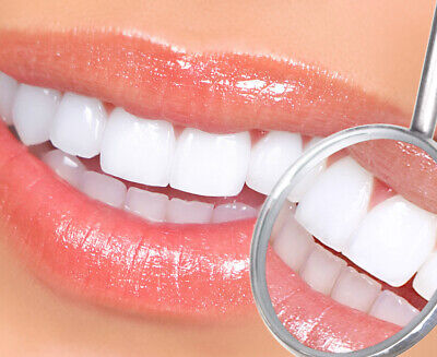 AU5 • Buy Teeth Whitening Thermo-Moulding Mouth Trays 4 X Brand New