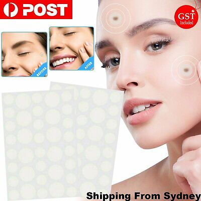 AU4.79 • Buy 36Pcs Skin Tag Remover Patches Acne Conceals Tags Skin Facial Spot Covers Skin C
