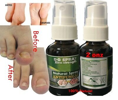 Nail Fungus   Compare Prices on dealsan.com
