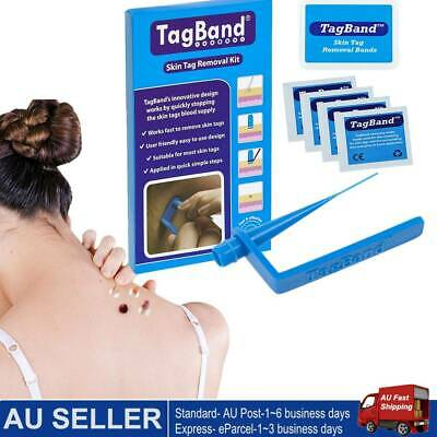AU15.12 • Buy Micro TagBand  Skin Tag Remover Kit With Extra Bands And Free Retainer Box