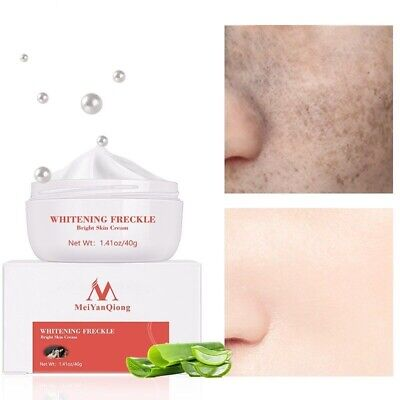 £9.95 • Buy Strong Effect Powerful Whitening Freckle Cream Remove Melasma Acne Spots Pigment