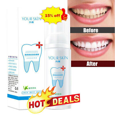Teeth-Cleaning Whitening Mousse Toothpaste Removes Stains Plaque Z2I6 • 4.52£