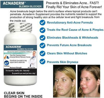 £19.95 • Buy Acne Support Clear Clean Skin Reduce Blemishes Scars Blackheads Detox Spots Aid
