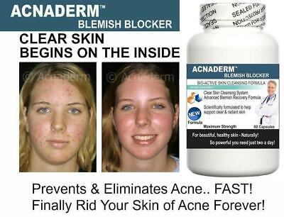 £49.95 • Buy 4 Acne Support Pills Clear Clean Skin Blemishes Scars Blackheads Detox Spots Zit