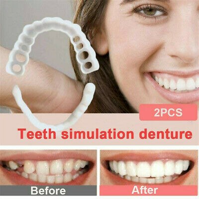 Magic Teeth Brace Temporary Smile Comfort Denture Cosmetic Dent Mouth Braces Kit • 6.96$