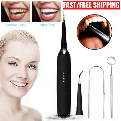 Electric Dental Teeth Cleaning Kit Tartar Calculus Plaque Remover Tooth Scraper  • 14.59£