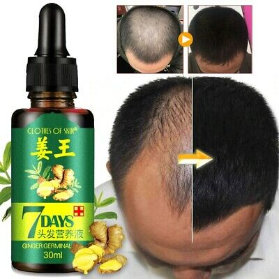 AU10.16 • Buy Fast ReGrow 7 Day Ginger Germinal Serum Essence Oil Hair Growth Loss Treatment