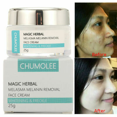 £10.05 • Buy NEW Strong Whitening Cream Freckle Removal Speckle Melasma Spots Melanin Pigment