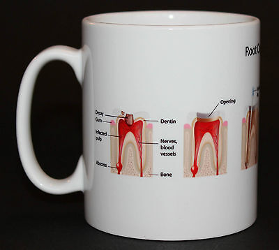 Dentist Root Canal Dental Teeth Gift Mug • 5.99£