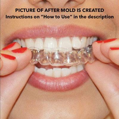 AU6.33 • Buy 2 X Teeth Whitening Mouth Trays - Remouldable Gum Shields - Easy & Fast Moulds