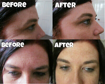 £5.99 • Buy 10 Years Younger In 1 Minute Instant Anti Wrinkle Cream Better Than Moisturiser