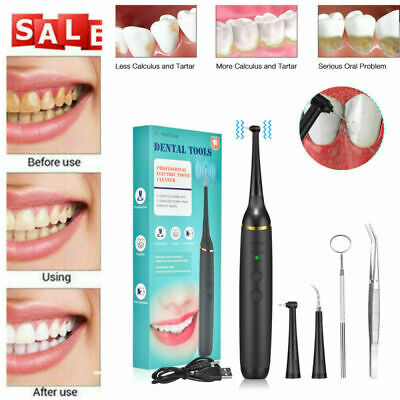 £9.79 • Buy Ultrasonic Dental Calculus Remover Stains & Tartar Teeth Whitening Cleaning Kit