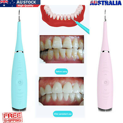 AU11.99 • Buy Electric Sonic Dental Scaler Tartar Calculus Plaque Remover Oral Tooth Cleaner
