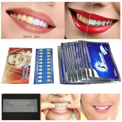 AU28.08 • Buy Teeth Whitening Strips Professional Bleaching Advanced Ultra White Routine 28PCS