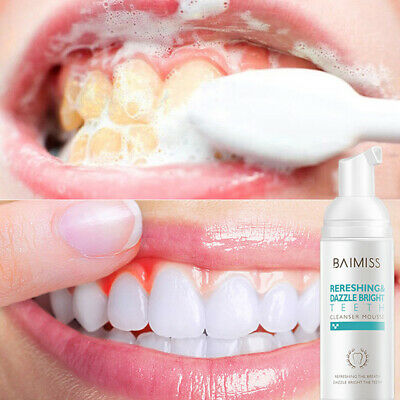 Teeth Whitening Cleanser Mousse Toothpaste Oral Plaque Stain Remover Bad Breath • 14.46£