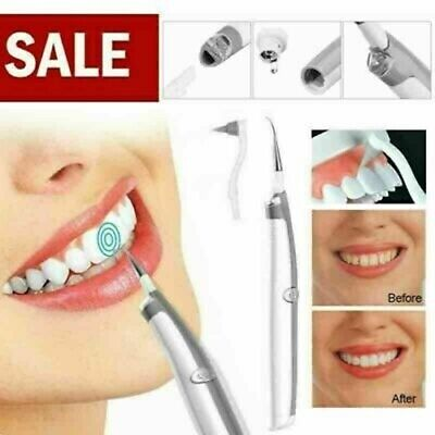 Electric Sonic Pic Tooth Beauty Cleaner Plaque Remover Vibrating Teeth Tool New • 6.39£