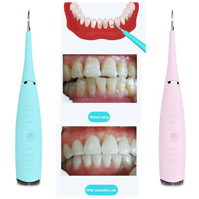 $15.99 • Buy Health Ultrasonic Teeth Cleaning Tooth Calculus Tartar Stain Oral Cleaner US