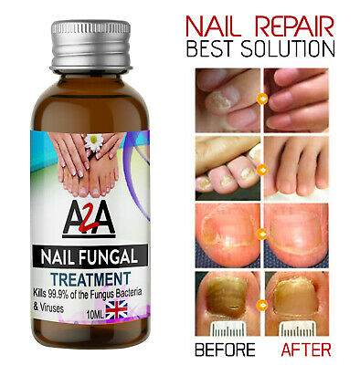 £3.99 • Buy 10ML Fungal Nail Treatment Highly Effective Kill Nail Fungus For Best Result UK