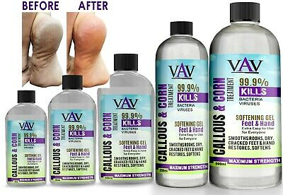 £4.99 • Buy CALLUS & CORN Remover Liquid - Treatment For Foot & Hand, Pain Free Removal Oil
